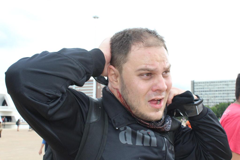 O professor da rede pública de Goiás, Alexandre de Paula, foi golpeado pela PM com cassetete. Foto Lizely Borges.JPG